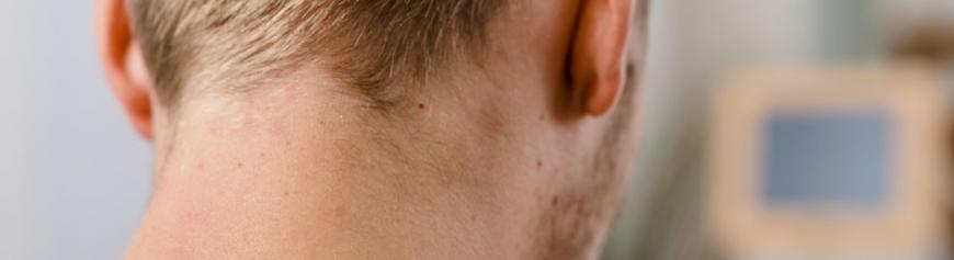 Odstranění znamének Praha předchází vyšetření dermatoskopem